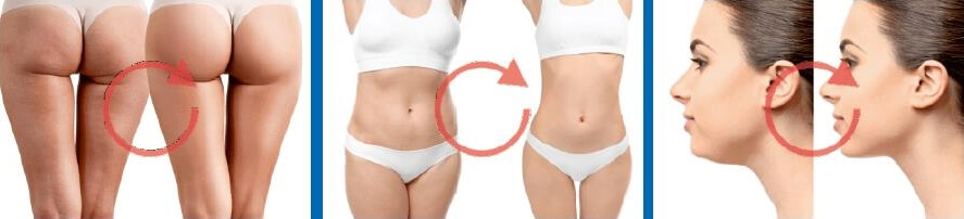 Effects and impact of slimming injections Johannesburg South Africa